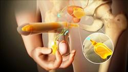 Фаллопротезирование эректильная дисфункция